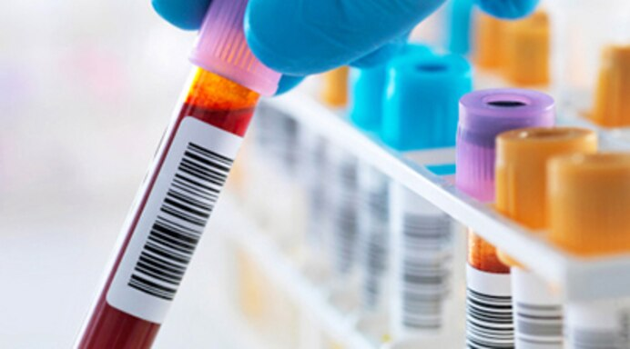 Thyroid Blood Testing