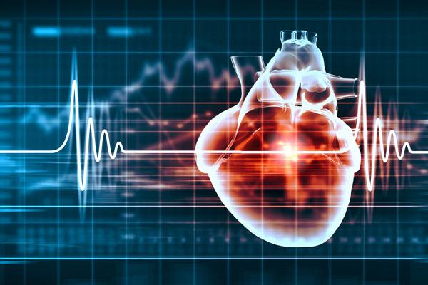 Cardiovascular Profile